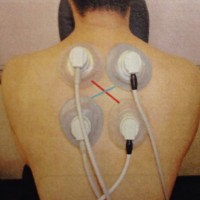 Hi-Voltage治療機
